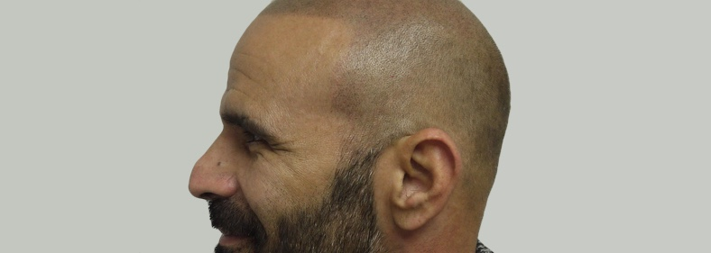 Scalp Micropigmentation Cost UK